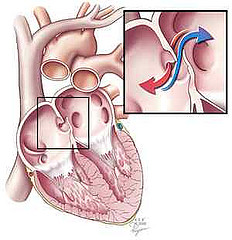 obat jantung bocor tradisional