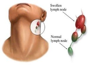 obat tradisional benjolan di leher