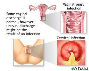 obat tradisional keputihan wanita
