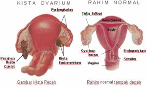 obat tradisional kista ovarium