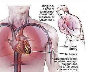 obat tradisional jantung lemah