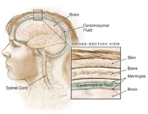 obat tradisional radang selaput otak